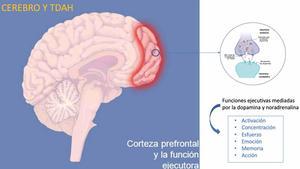 Transtorn per dèficit d'atenció i hiperactivitat (TDAH)  - T.D.A.H. Dexeus