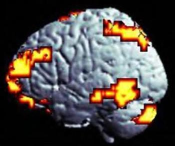 Alteraciones neuroanatómicas en el adulto con TDAH- Dexeus