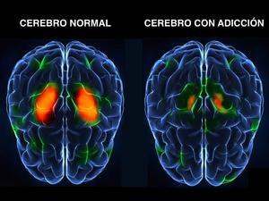 ¿Qué pasa en el cerebro de una persona adicta a sustancias? - Adicción a sustancias Dexeus